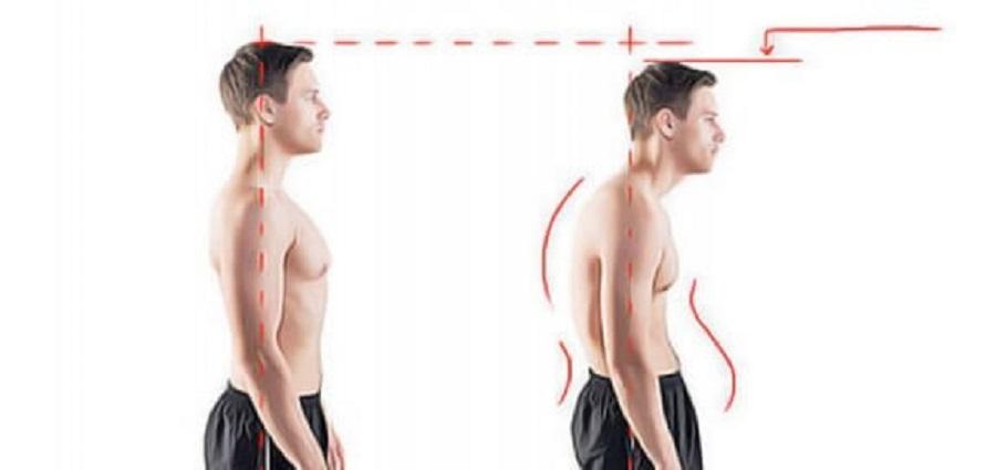 dos arrondi correcteur de posture pas cher
